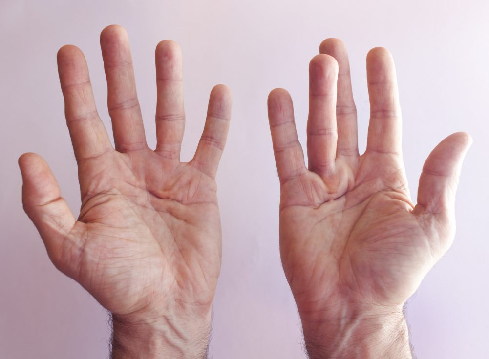 Herbal Remedies for the Treatment of Trigger Finger, Latest News Adda